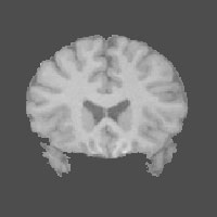 a coronal slice of a T1-weighted MR image of a brain